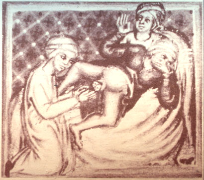 Unusually graphic depiction of childbirth in Codex Series Nova 2641, Osterreichische Nationalbibliothek, Vienna
